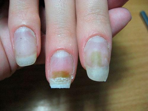 Зачем делать коррекцию ногтей